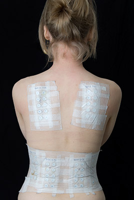 Woman with Patch Tests
